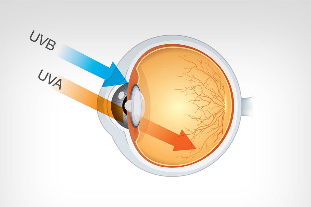 Enquanto os raios UVB danificam a córnea e o cristalino, que fazem a absorção das luzes em nossos olhos. A incidência de raios UVB no cristalino aumenta a possibilidade de se desenvolver catarata nos olhos.